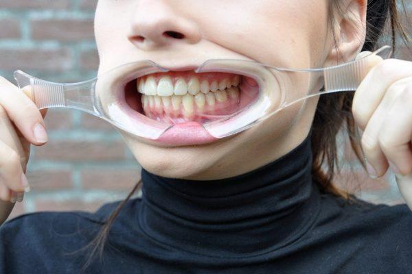 omft.info-lippenspreiders-oro-myofunctionele-therapie-lowres
